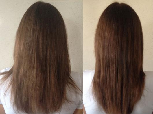 При каком заболевании печени выпадают волосы